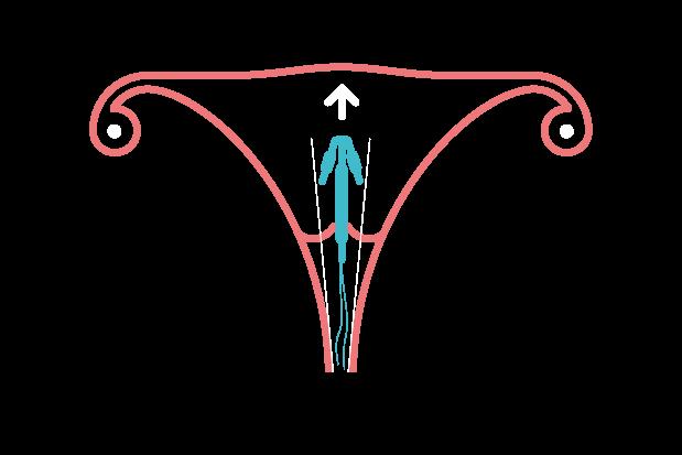 Non-hormonal coil information | SH:24